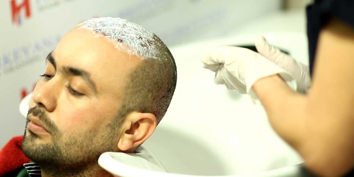 شرح مفصل عن كيفية غسل الرأس بعد عملية زراعة الشعر
