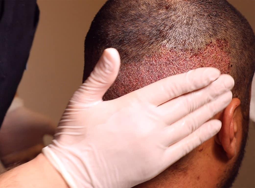 وضع كريم مرطب - مراحل غسل الرأس بعد عملية زراعة الشعر