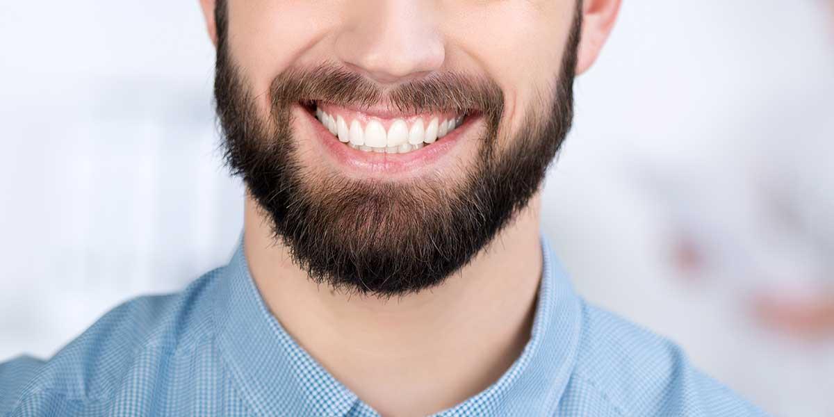 زراعة شعر الوجه بالاقتطاف