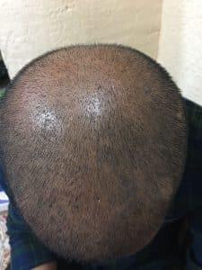 بعد عملية زراعة الشعر باسبوعين