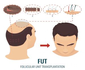 تقنية زراعة الشعر بالشريحة, زراعة الشعر بدون جراحة