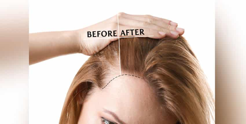 Hair Transplant without shave how is it Done?