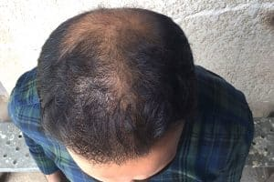 شكل مريض الصلع قبل زراعة الشعر