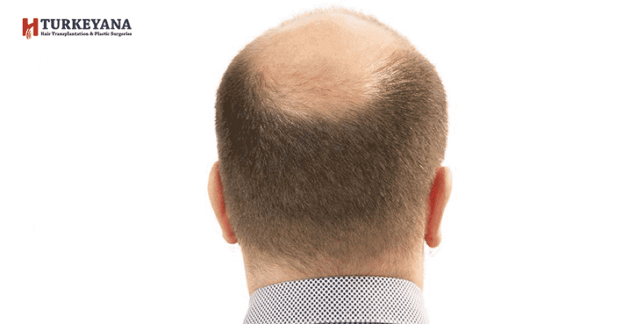 Baldness Signs and Baldness Causes for a Faster Treatment