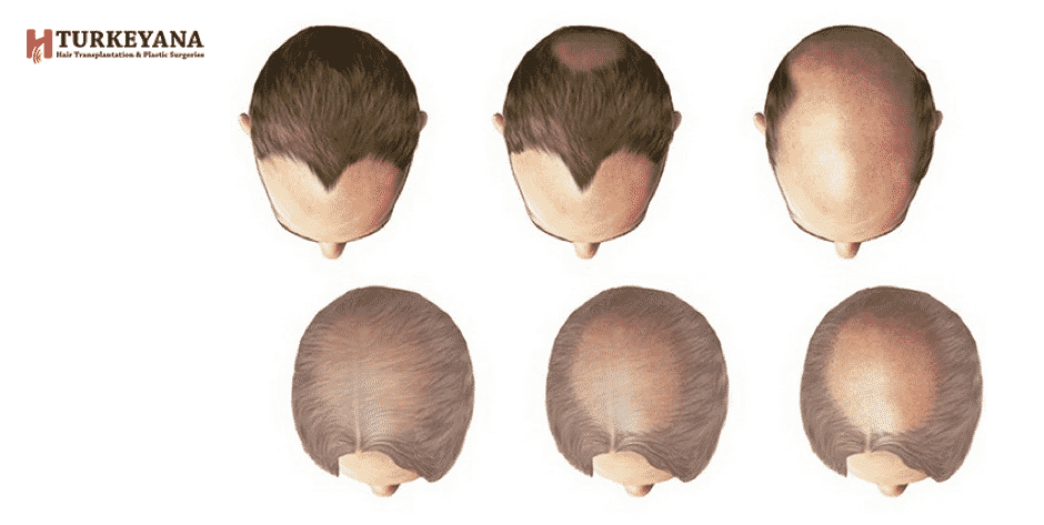 Baldness Types and Best Baldness Treatment through Pictures