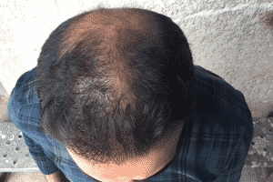 The period of the transplanted hair growth
