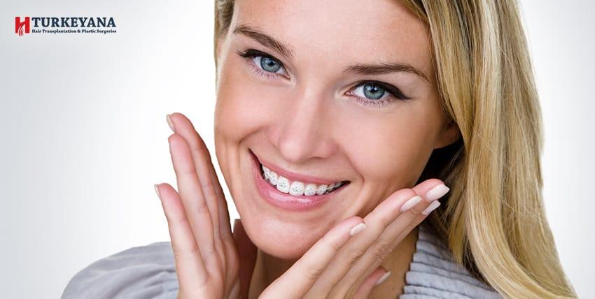 ما هي مدة تقويم الاسنان للحصول على اسنان جميلة