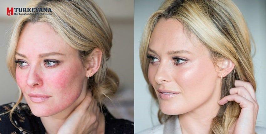 علاج احمرار الوجه بعد التقشير