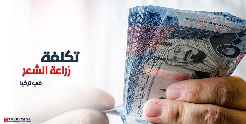 تكلفة زراعة الشعر في تركيا بالريال السعودي 2019