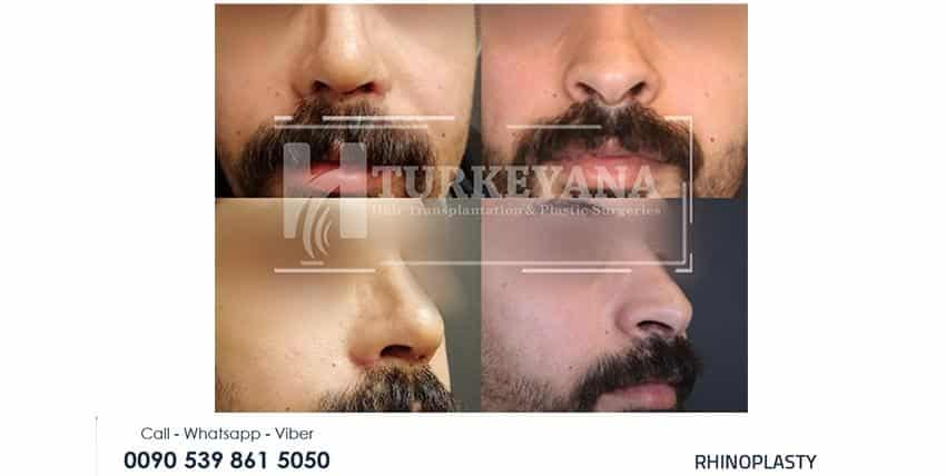 plastic surgery in turkey reviews